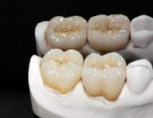 Инновационные методы в стоматологии: напечатайте себе новые зубы