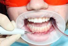 Ультразвуковой скалер наиболее безопасен при профессиональной гигиене зубов