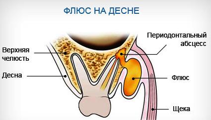 Зубная киста на десне
