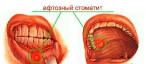 Локализация афтозного стоматита