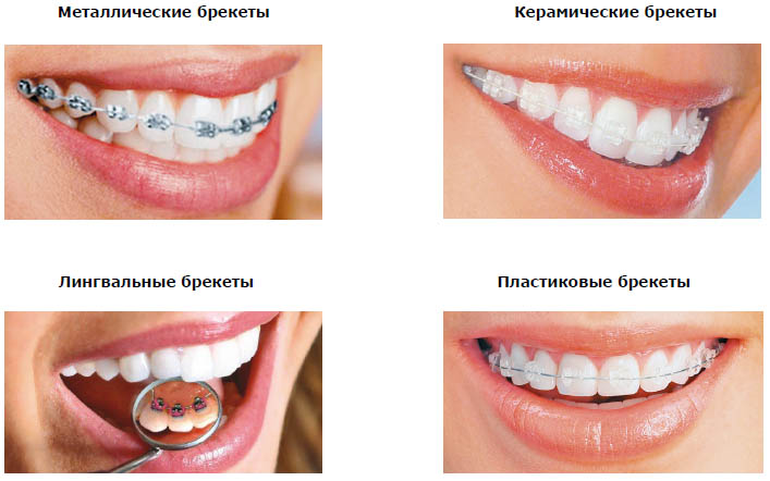 виниры на зубы что это отзывы