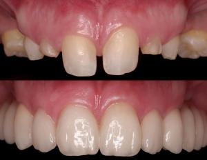 коронки для реставрации зубов