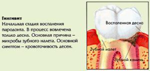 Схема гингивита