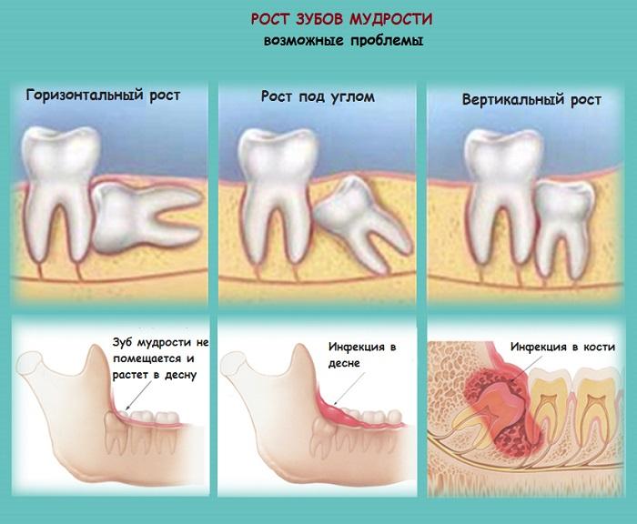 Прорезывание Зуба