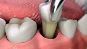схема удаления зуба