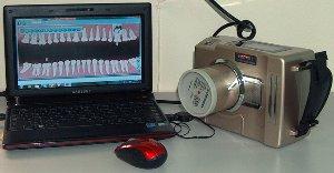 Стоматологический визиограф