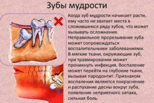 воспаление десны над зубом мудрости