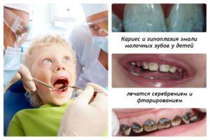 серебрение фторирование молочных зубов