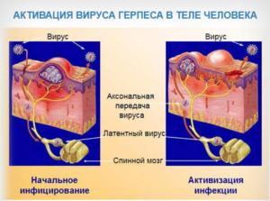 активация вируса герпеса