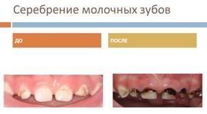 серебрение зубов фото до и после