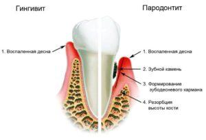 схема развития гингивита и пародонтита