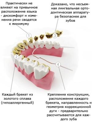 лингвальные брекеты инкогнито