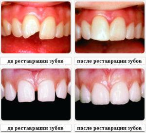 восстановление зубов фотополимеров