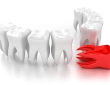 кровотечение после удаления зуба