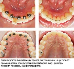 лечение лингвальными брекетами до и после