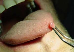 Папилломы на языке и во рту: причины, фото, лечение ...
