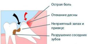 симптомы перикоронарита