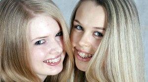 ортодонтия у подростков
