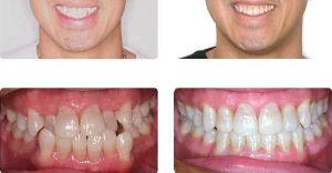 фото до и после использования керамическими брекетами