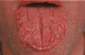 Болезни языка фотографии признаки смотреть