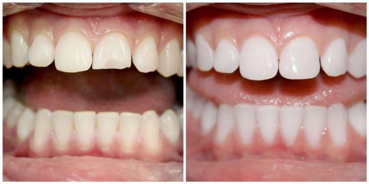 виниры на сколы на зубах