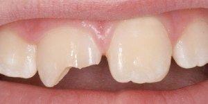 сломался молочный зуб