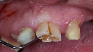 зуб сломан