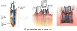 коронки на имплантах
