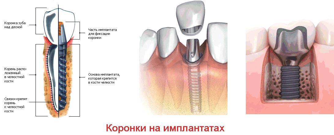 Сколько стоит поставить коронку на один зуб
