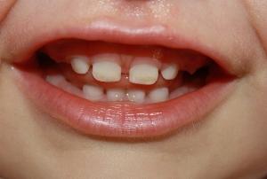 сколько зубов должно быть в год