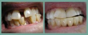 фото до и после шинирования