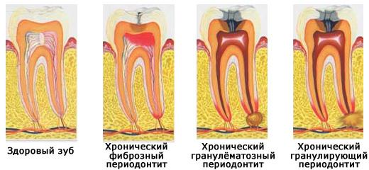 формы хронического периодонтита
