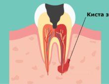 схема киста зуба