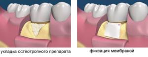 лоскутная операция