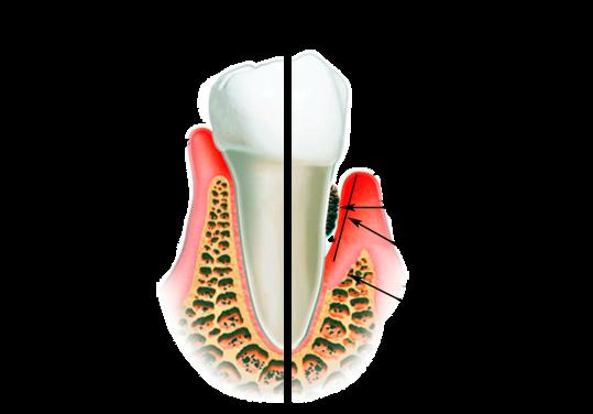 лечение зубов по знакомству