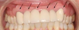 передние зубы под коронками
