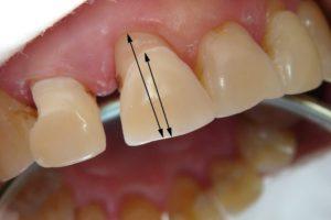 отбеливание зубов опасно или нет