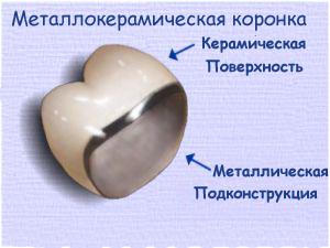 структура коронки