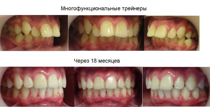 трейнеры фото до и после