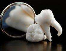рекомендации после удаления зубов