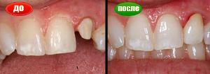 восстановление зуба коронкой