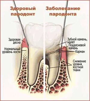 схема зубной камень