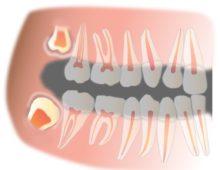 зуб мудрости сколько будет болеть