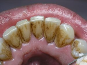камни на зубах