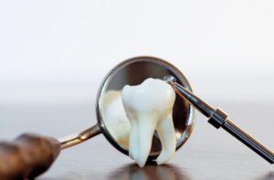 зубы мудрости - когда вырастают