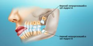 зубы мудрости - особенности прорезывания