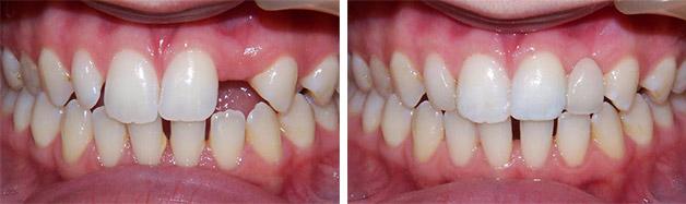 Адгезивный протез на передние зубы