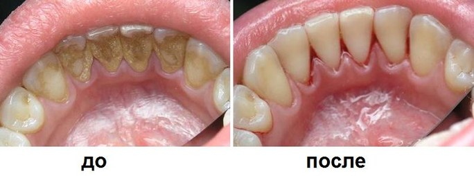 фото до и после профессиональной чистки