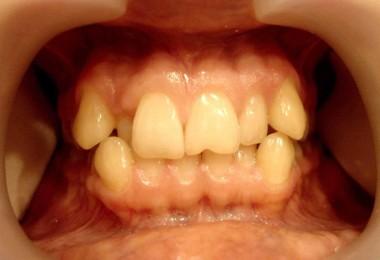 Как выровнять зубы без брекетов, способ выровнять зубы 59