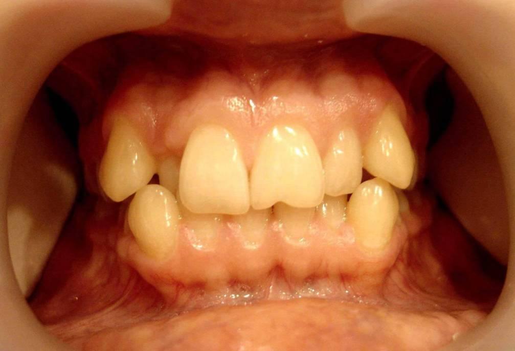 Как выровнять зубы в домашних условиях